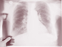 Multidrug-resistant TB will rise in India, says new study