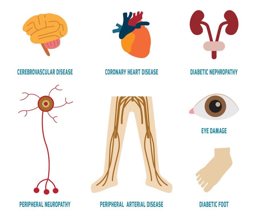 diabetic  complications साठी प्रतिमा परिणाम